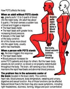 How POTS affects the body.