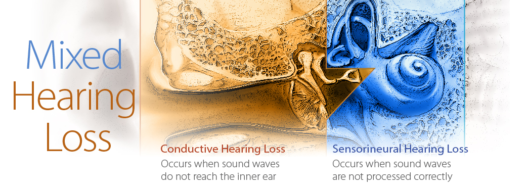 Mixed-Hearing-Loss-1040x376